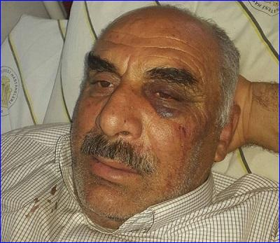 Iskandar Dayan, an Assyrian farmer in south-east Turkey who was attacked by Kurds, in hospital.